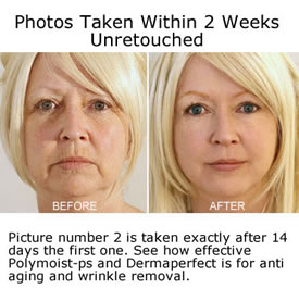 Polymoist-PS Before and After Results